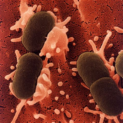 blatter infection symptoms in woman picture 15
