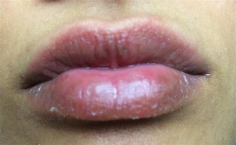 Lip allergies picture 13