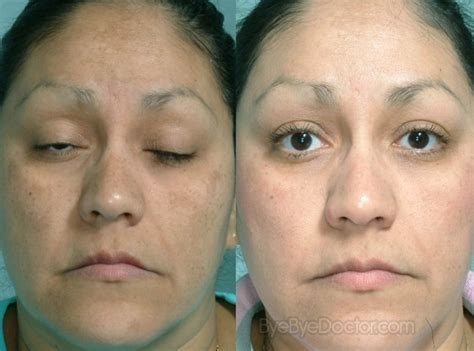 acne graves disease picture 3