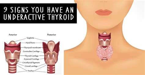 can you have your thyroid dissolved picture 11