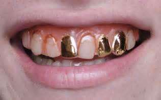 platinum teeth picture 1