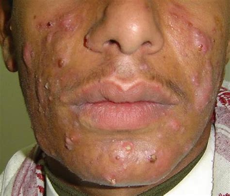 cystic acne picture 9