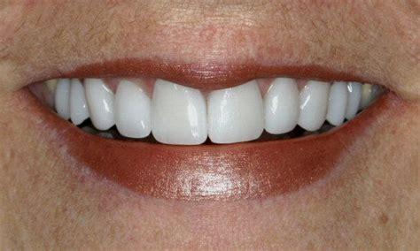 antibiotic discoloring teeth picture 14
