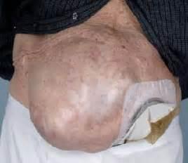 intestinal strangulation in s picture 9