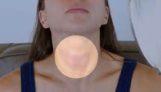 men's thyroid problems picture 2