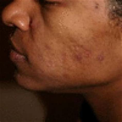 how fix skin after acne antibiotics picture 3