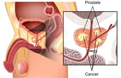 list best prostate surgeons picture 7