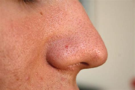 wart on nose bleeding from pores picture 1
