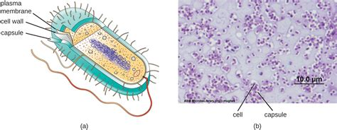 what is it when you have ongoing bacterial picture 7
