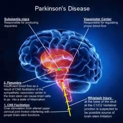 nathan zakheim disease picture 3