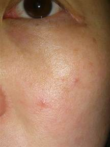 itchiness after acne treatment picture 7