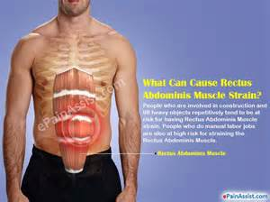 abdominal muscle spasm picture 3