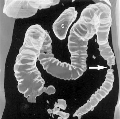 neuro endocrine colon cancer picture 3
