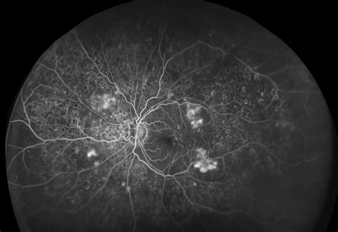 california diabetic retinopathy picture 19