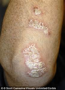 flaky skin pain picture 3