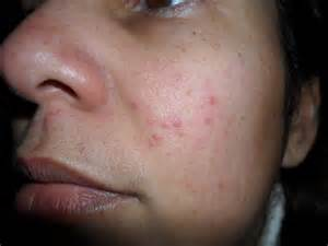 skin rash roseasha picture 14
