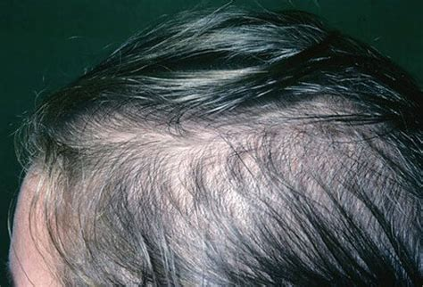 yeast on the scalp picture 11