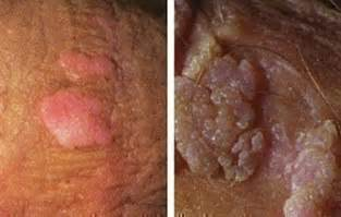 genital wart on underside of penis picture 7