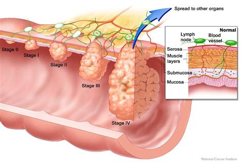 how do you cleanse your liver picture 9