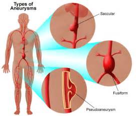Aneurysm warning bleed blood pressure 80 50 picture 2