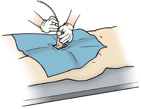 bladder washout punishment picture 2