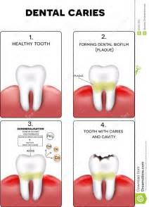 calcium loss in teeth picture 2