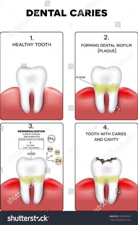 calcium loss in teeth picture 18