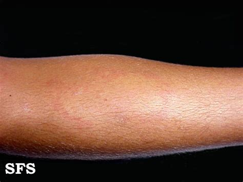 Physical urticaria picture 7