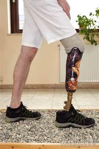 Prostatic legs picture 6