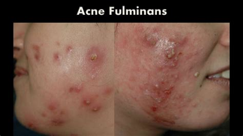 acne excoria picture 1