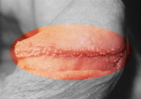 pictures of spots on penis picture 3