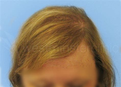 correct hair thinning in women picture 1