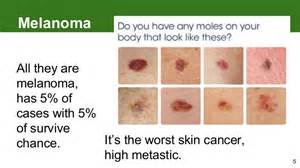 pictures of melanoma skin cancer picture 7