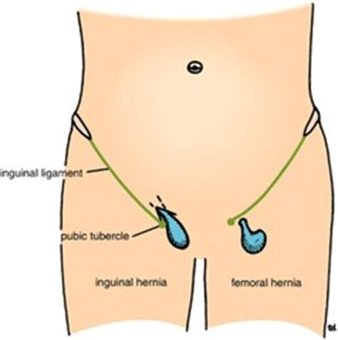 hernia pushing on the el in the right lower back picture 1