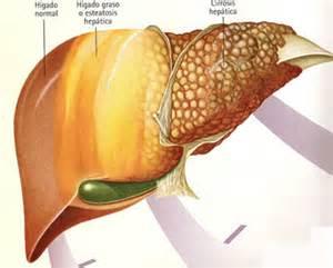 liver disease symptoms picture 1