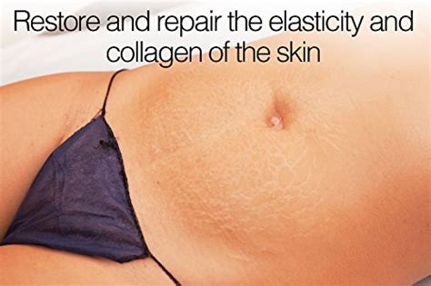 stretch mark & scar cream - reduces old picture 13