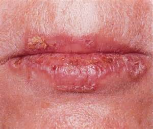 herpes information picture 2