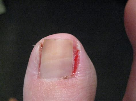 self removal of ingrown toenail picture 7