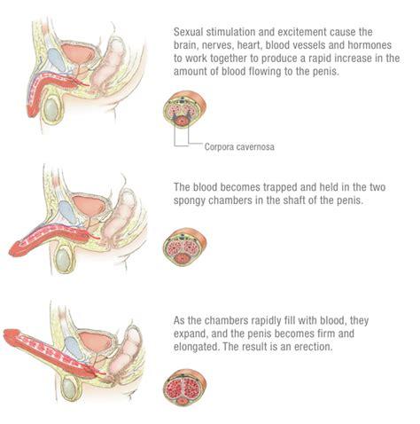 Erectile dysfunction treatments picture 3