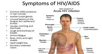 h hurt hiv symptoms picture 2