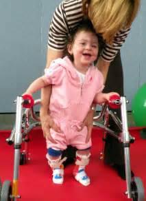 duchenne muscular dystrophy ka ayurvedic treatment picture 10