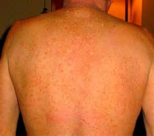 water causing skin rash picture 3