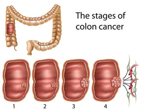 cancer on the outside of the colon picture 10