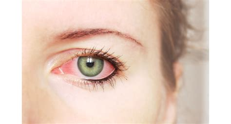 contact lense ers getting bacterial infection in eyes picture 10