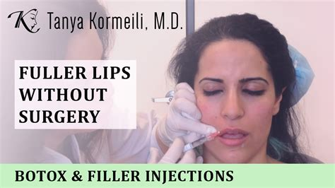 fuller lips without surgery picture 5