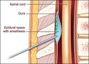 does spidural injection cause erection problems picture 11
