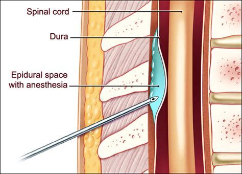 erection problems after epidural steroid block picture 2