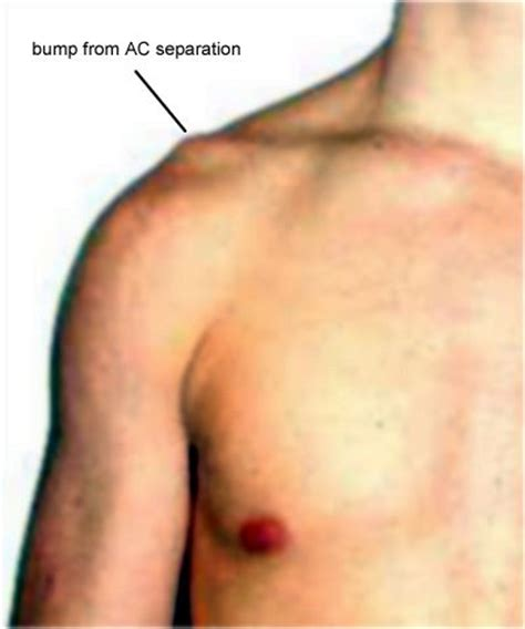 acromio-clavicular joint picture 1