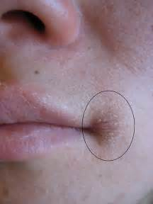 How to heal the worst chapped lips picture 9