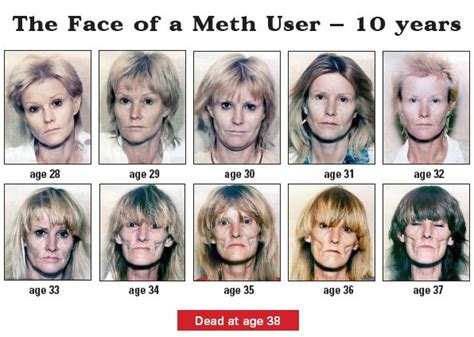 meth mouth aging effects picture 1